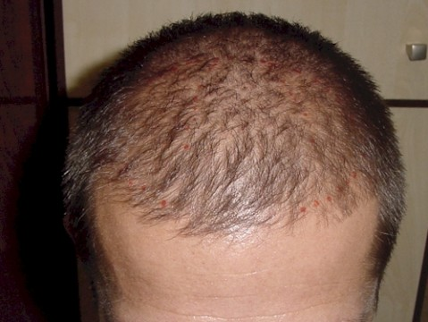 Transplantácia vlasov 7cb7852e6e2